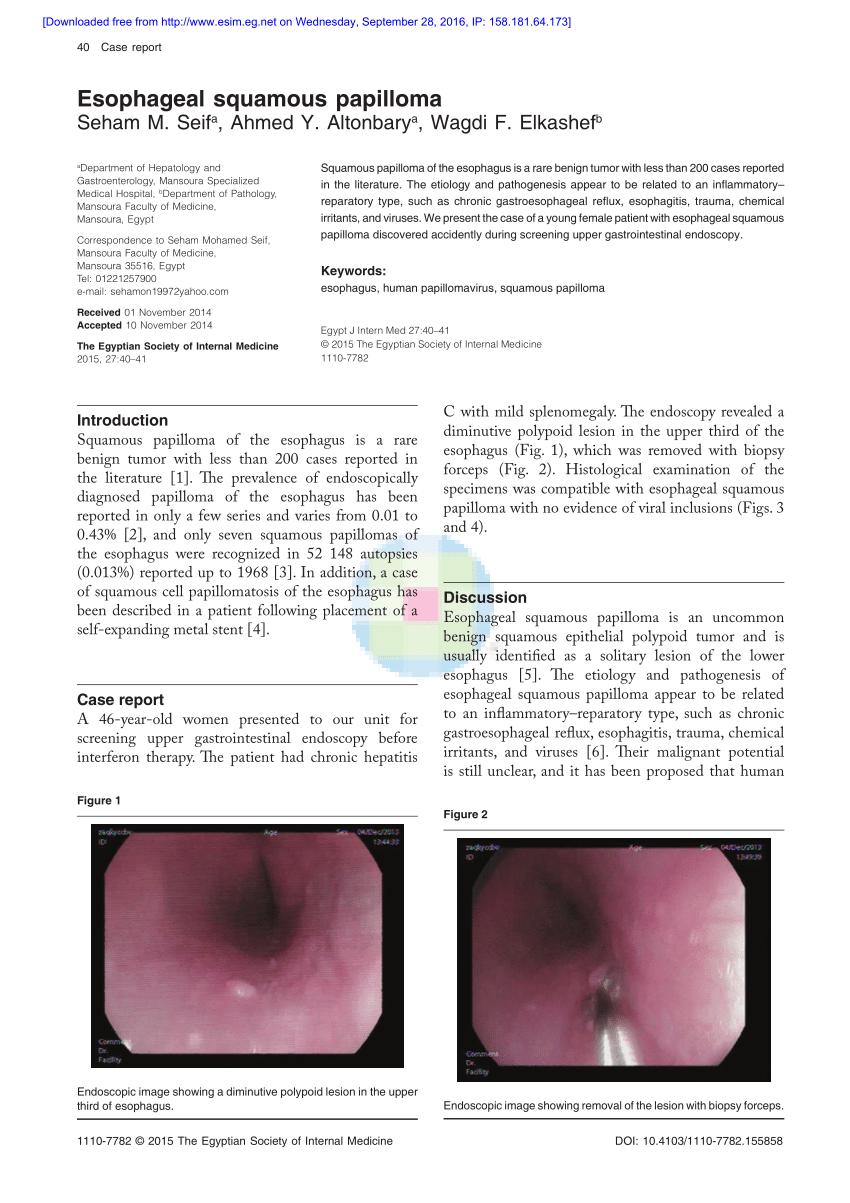 squamous cell papilloma esophagus pastile pentru viermisori copii