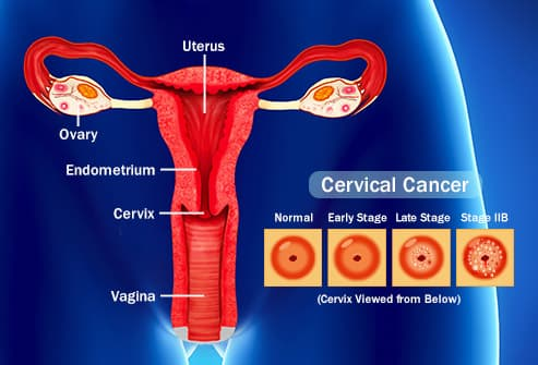 hpv and uterus cancer