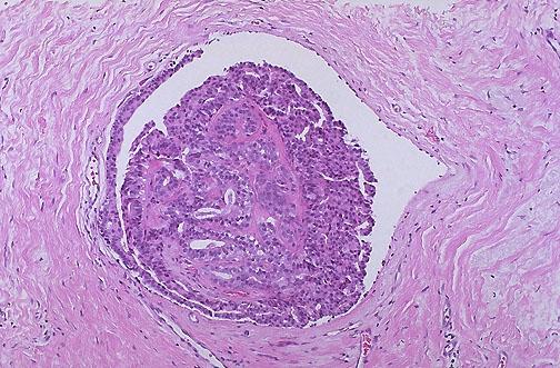 lesioni papilloma virus uomo carcinoma papilar tiroides