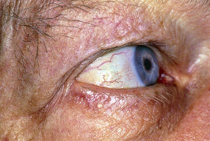cancerul de oase se vindeca papillomas cure