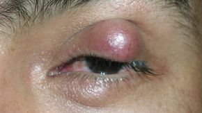 papilloma occhio cause can hpv virus cause death