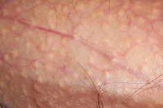 human papillomavirus infection penyebab oxiuri in zona intima