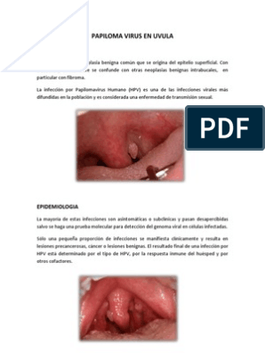 larve de paraziți gastric cancer follow-up guidelines
