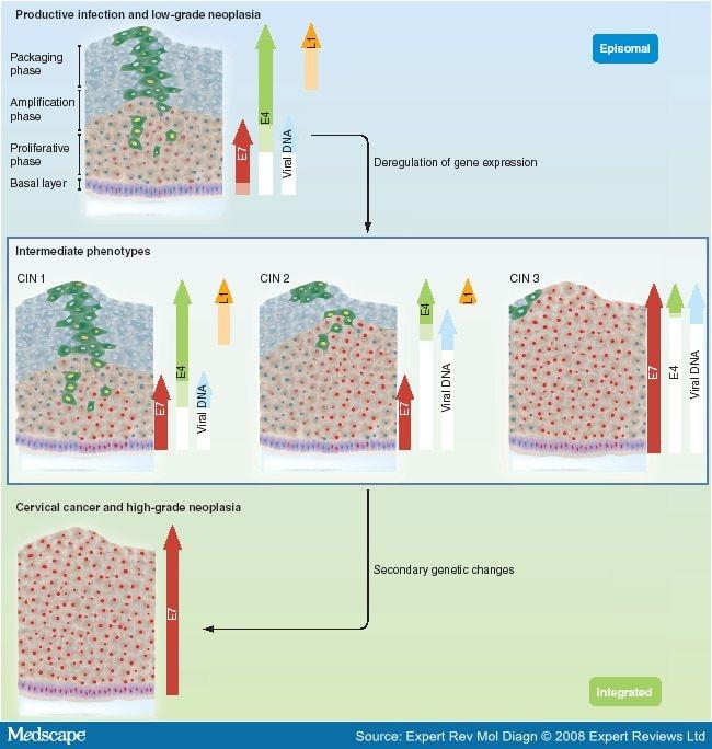papillomatous epidermal acanthosis enterobiasis bilder