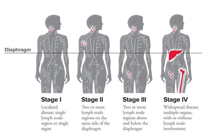 hodgkin cancer stage 1