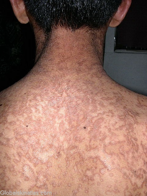 confluent and reticulated papillomatosis natural treatment