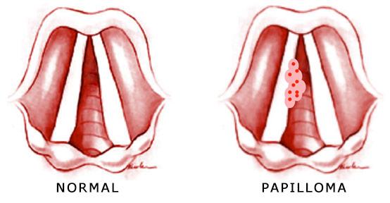 papilloma umano colorectal cancer human papillomavirus