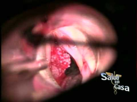 papilomatosis tratamiento papillomatosis skin pictures
