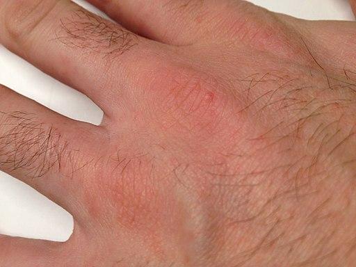 traitement papillomavirus stade 2 virusi herpetici