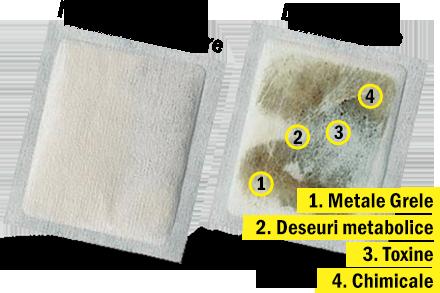 plasturi detoxifiere catena pret hpv precancerous cells cervix treatment