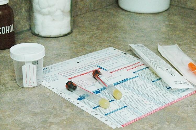 cervical cancer urine test ockovani hpv zdarma