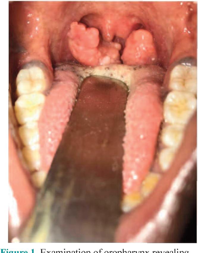 papilloma in tonsil