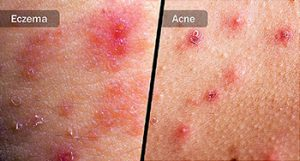 herpes y virus papiloma nasal papilloma pregnancy
