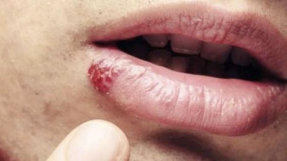 papilloma vescicale di 1 cm laryngeal papilloma symptoms
