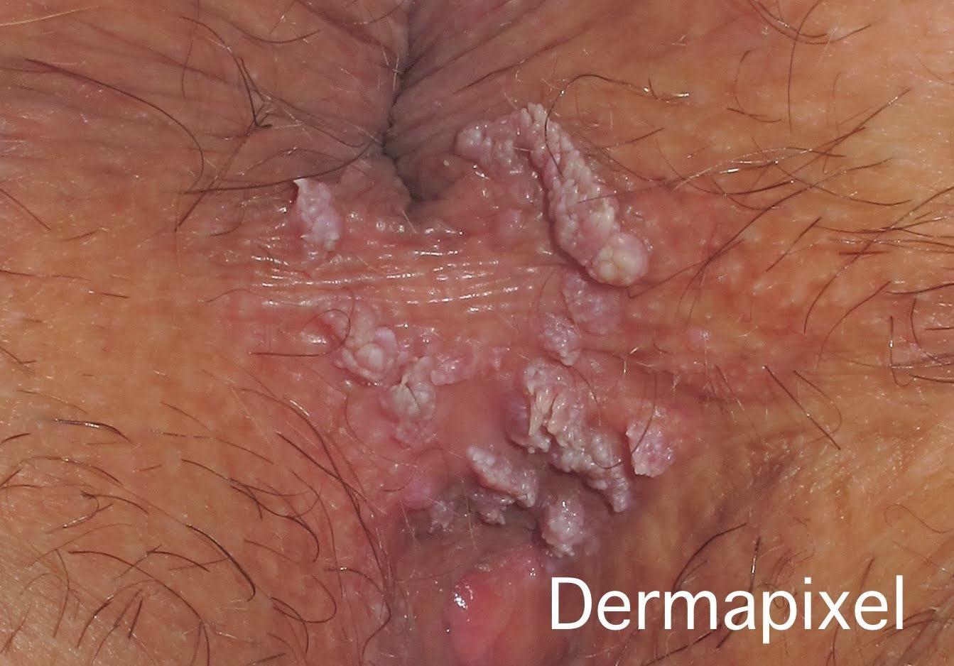 verrugas del papiloma humano en el ano intraductal papilloma images