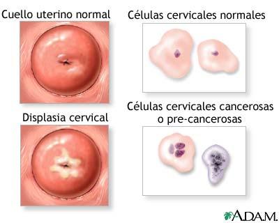 papiloma humano no canceroso cancer gastro-esofagian
