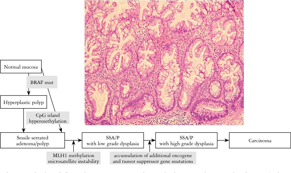 colorectal cancer pathology