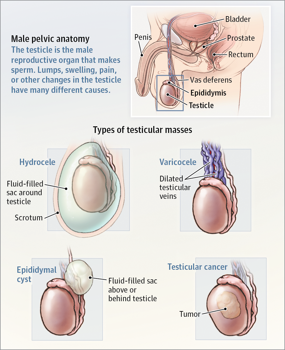 tonsil papilloma removal