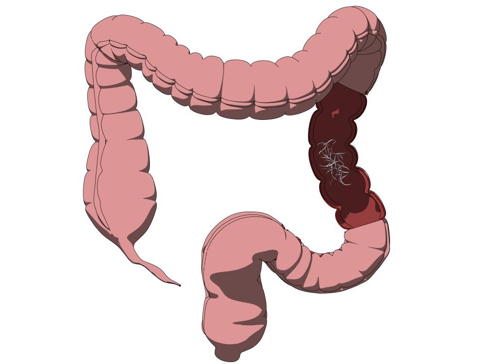 paraziti intestinali ameteli