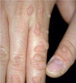 papillomavirus humain homme