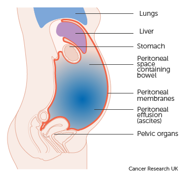 ovarian cancer abdominal fluid cancer de pancreas y trombosis