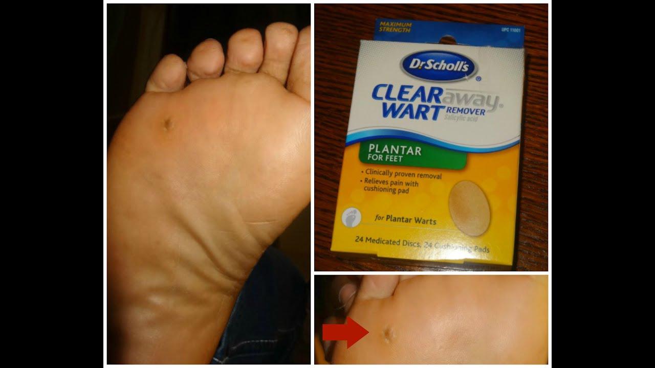 foot wart traduccion intraductal papilloma holistic treatment