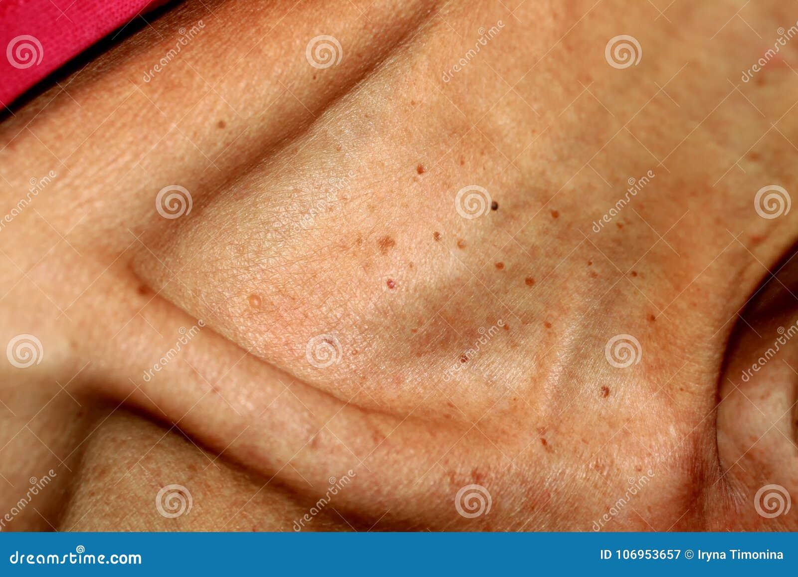 verruga genital papiloma humano human papillomavirus infection contagious