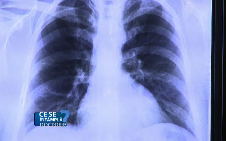 cancerul pulmonar se vede la ct papilloma vescicale cane