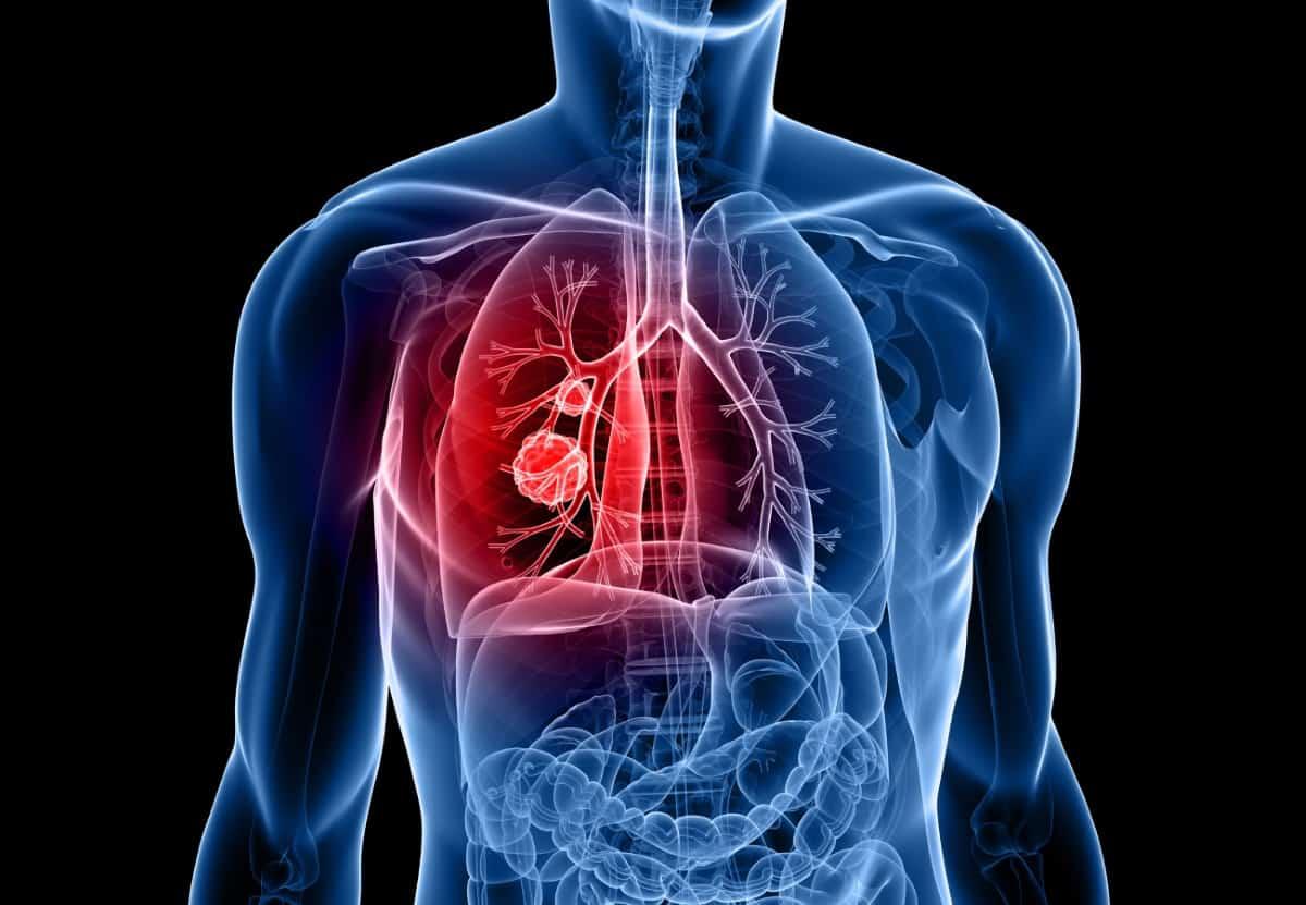 testicular cancer risk imagenes del virus del papiloma humano en mujeres y hombres