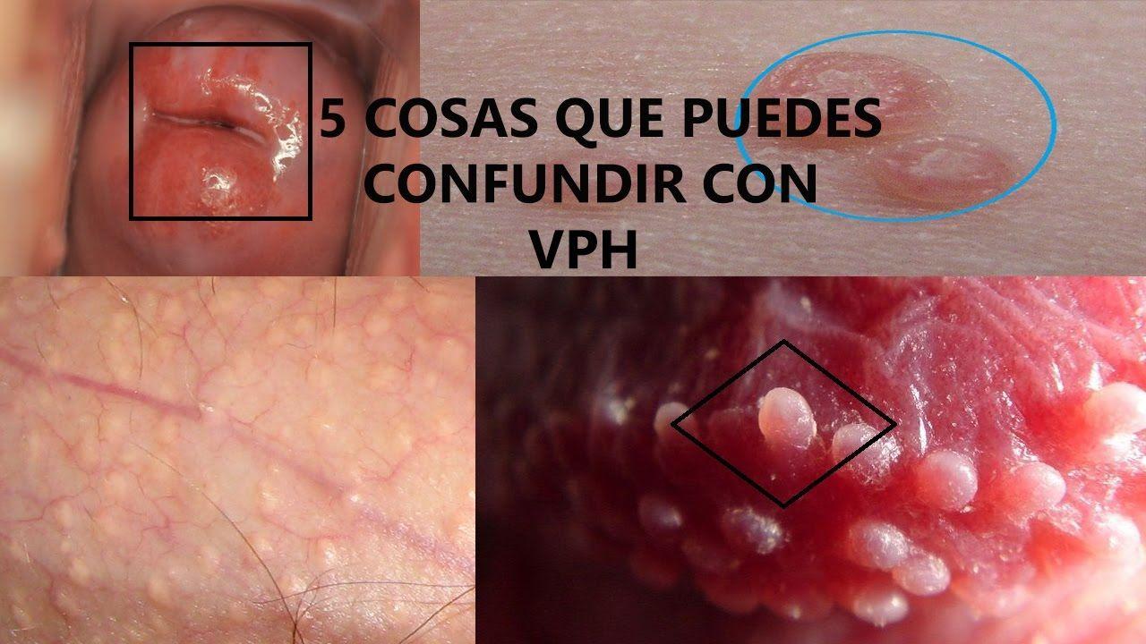 el virus del papiloma humano es un herpes