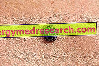 cancer de piele scuamos cancer de prostata avanzado en ancianos