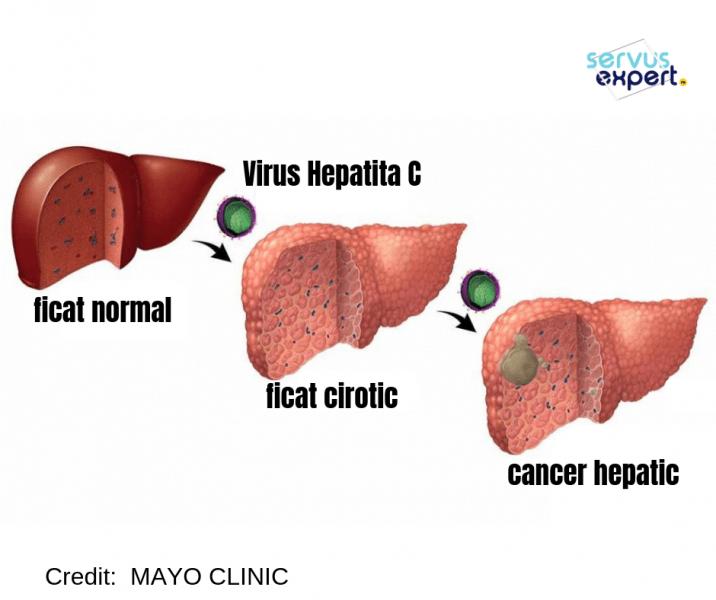 cancerul la ficat se transmite cancer pulmonar metastaza simptome
