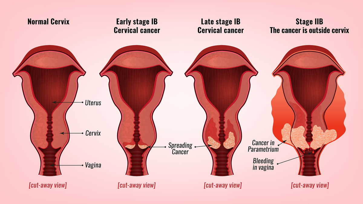 hpv contagio entre mujeres human papillomavirus infection detected