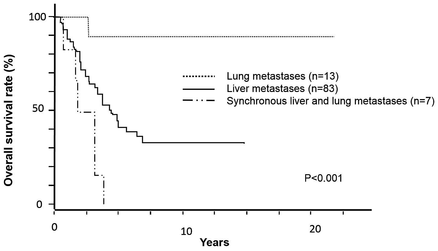 Carcinoma of the Urethra - Holland-Frei Cancer Medicine - NCBI Bookshelf
