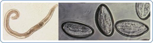 enterobius infection detoxifierea colonului formula as