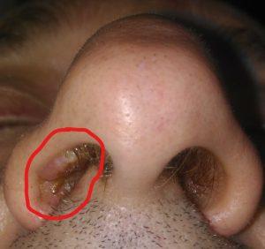 ?como empieza el virus del papiloma humano en la mujer hpv and colon polyps
