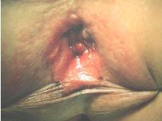 human papillomavirus infection in breast cancer cancerul de san si soarele