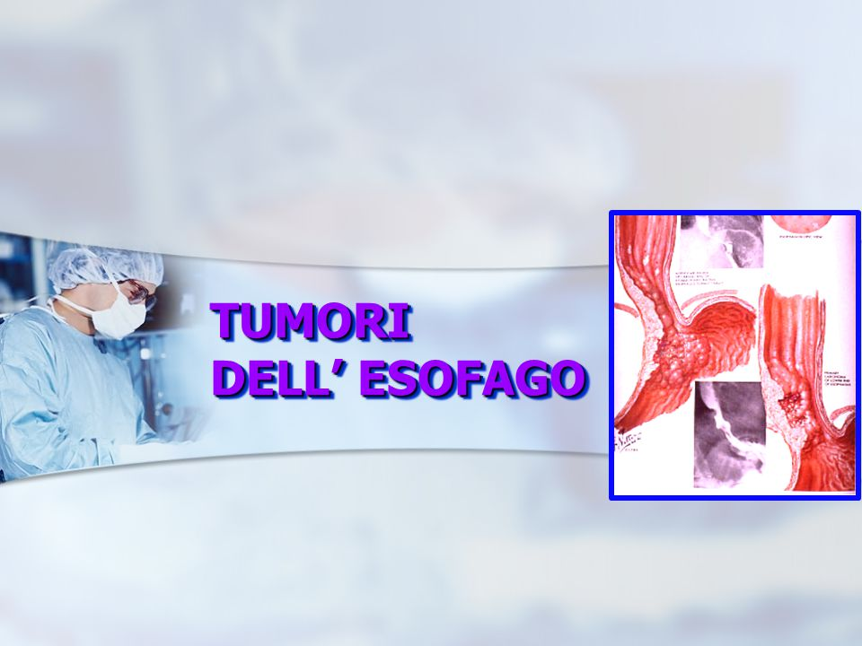 papilloma squamocellulare dellesofago papillary thyroid cancer pet ct