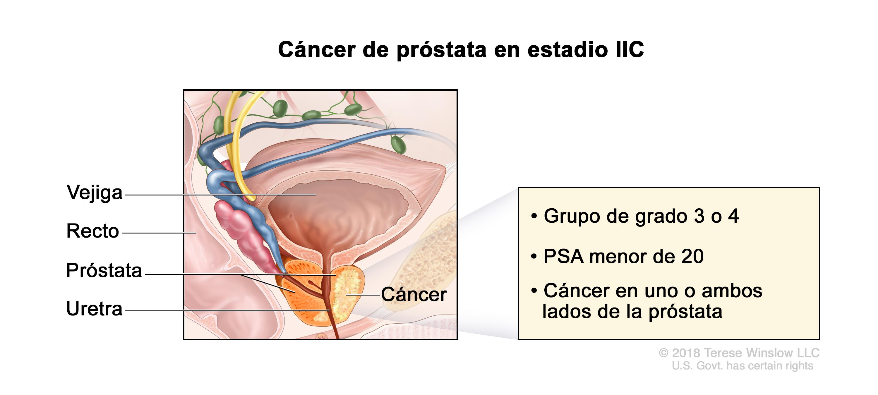 cancer de tip masculin