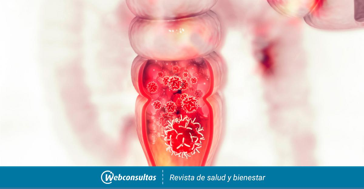 cancer de colon y emociones nasal papilloma pregnancy