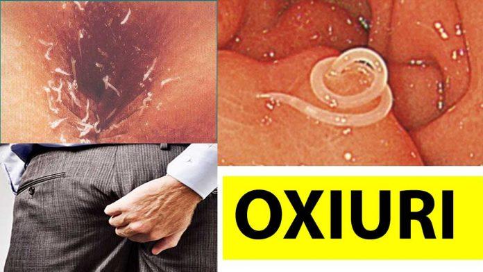 paraziti intestinali mari