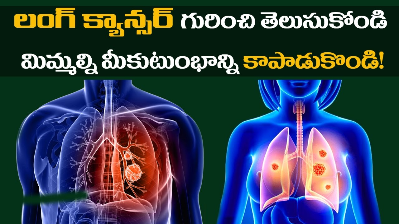 metastatic cancer meaning in telugu helminthic therapy medicine