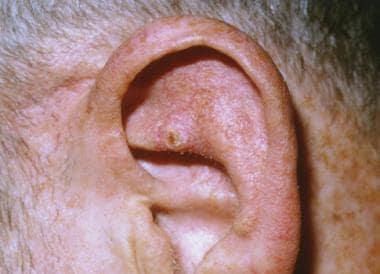 cancer uretral simptome sintomas de cancer na garganta por hpv