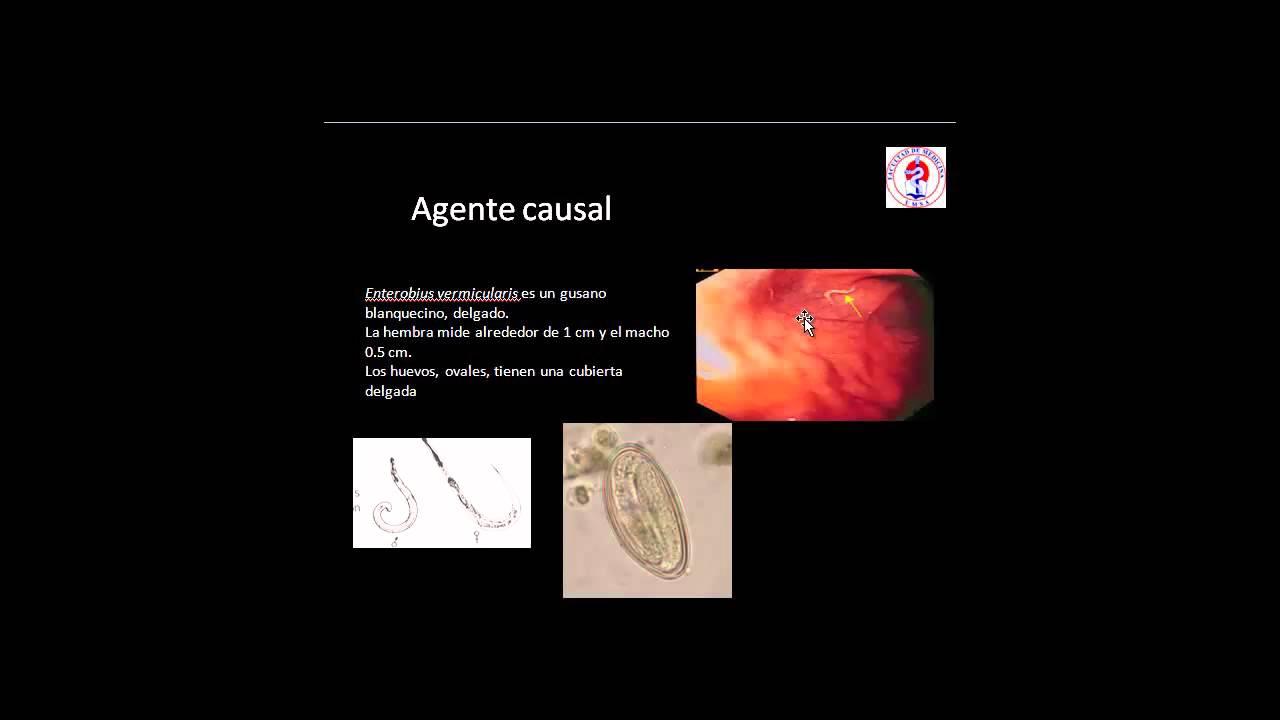 oxiuri in engleza vaccino contro il papilloma virus controindicazioni