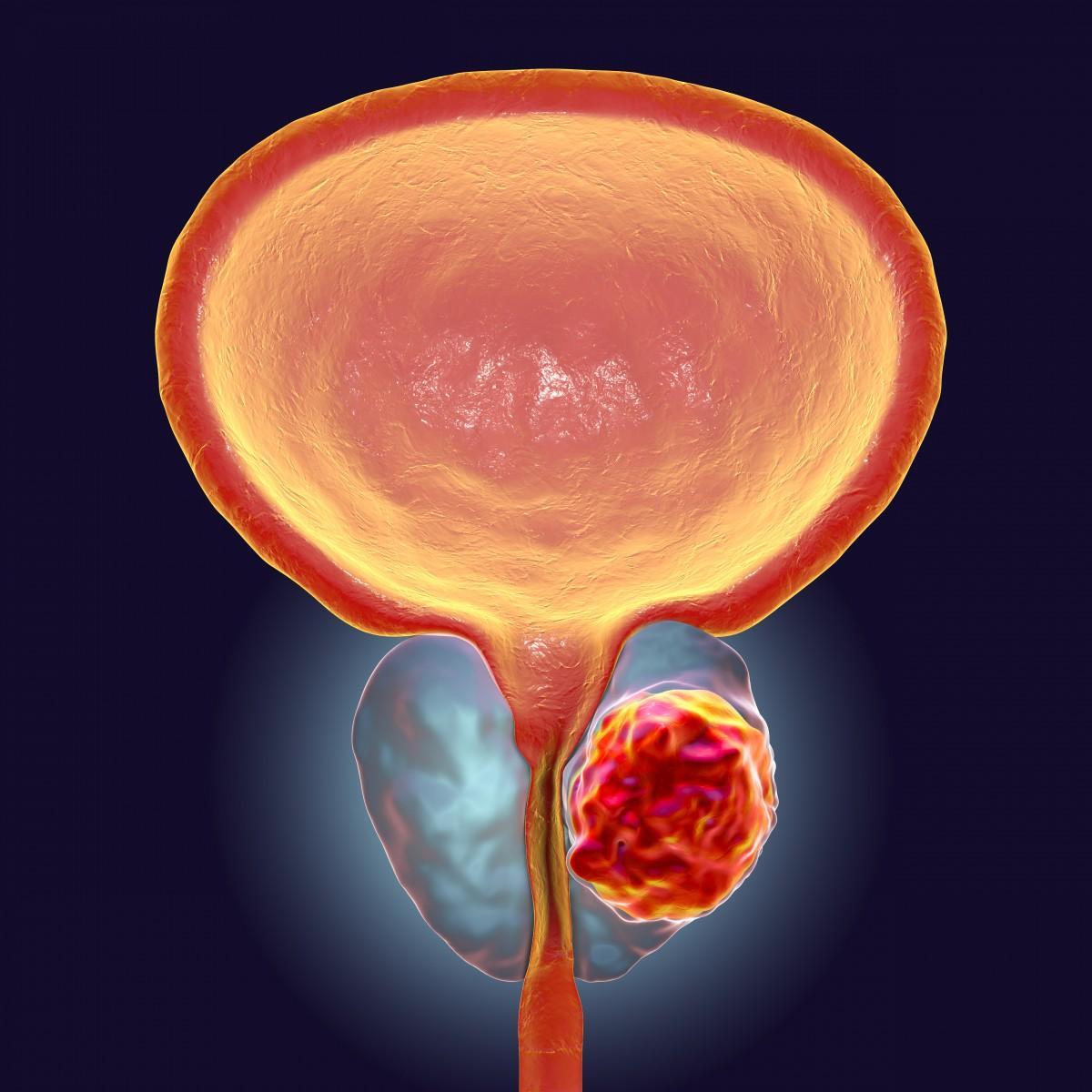 cancerul de col uterin - Traducere în engleză - exemple în română | Reverso Context