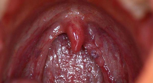 virus papiloma humano en boca sintomas