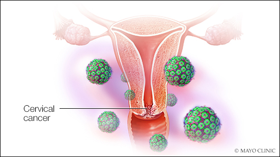 human papillomavirus on cervical cancer