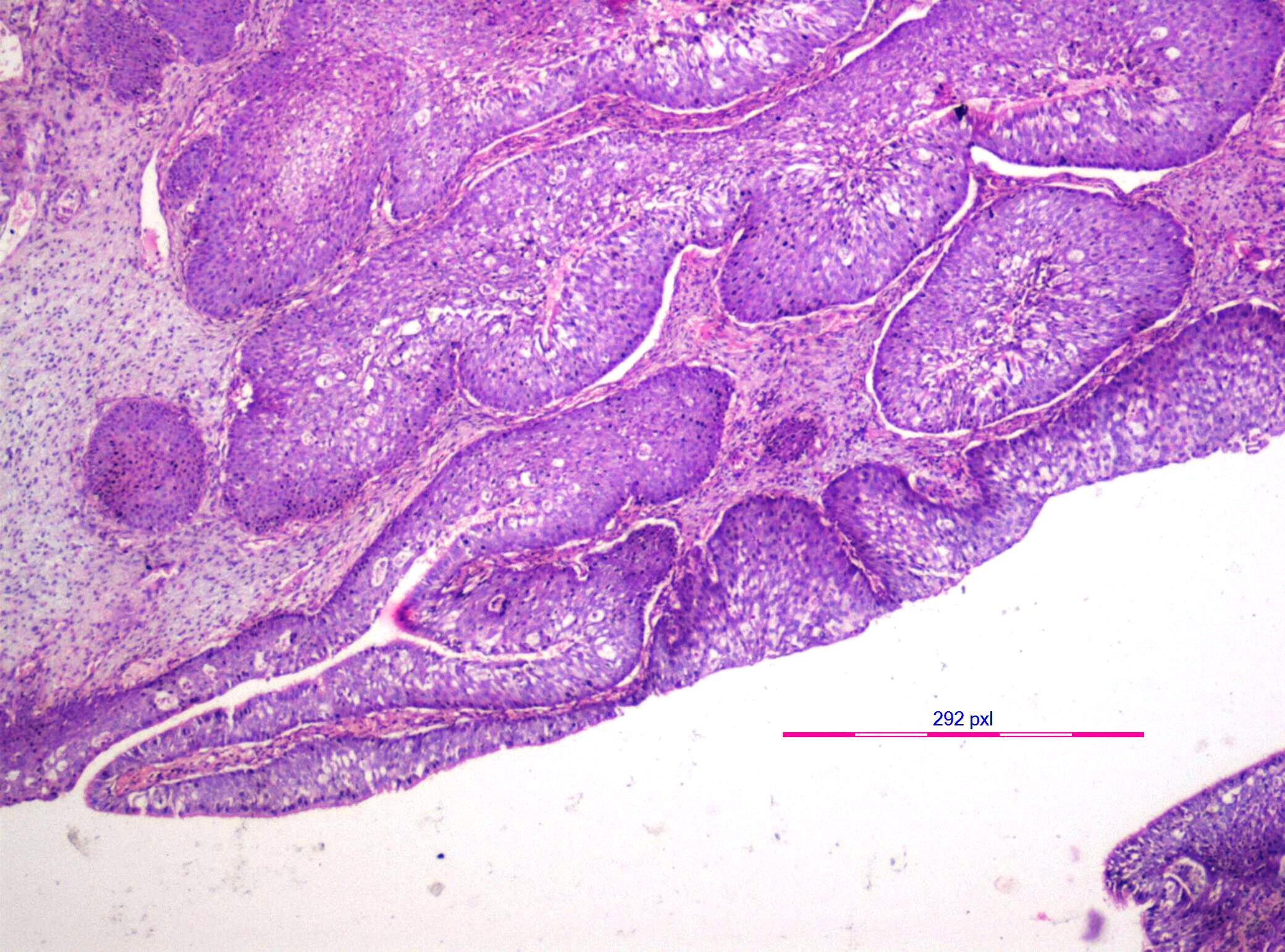 come si contrae papilloma virus nelluomo