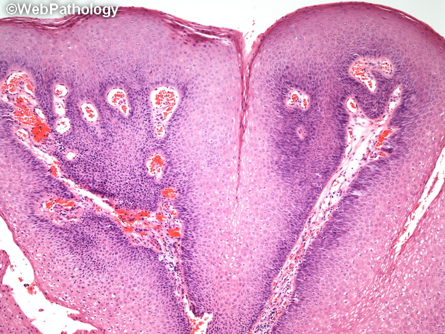 squamous papilloma of tongue pathology outlines genital hpv positive