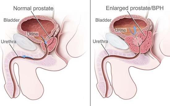 cancerul de prostata se trateaza